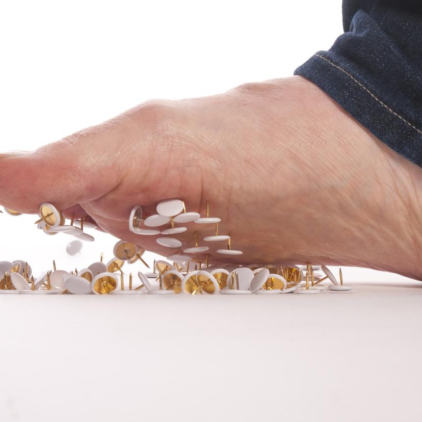 糖尿病による足の壊疽症状。切断しなければいけなくなる前に!